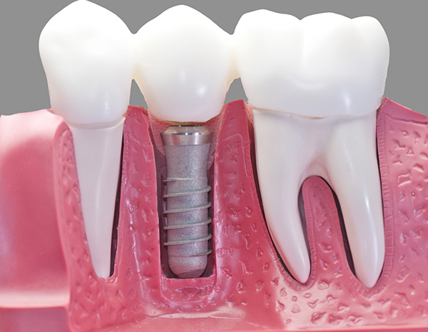 This model show the teeth have been capped and the stainless pin in the gums.With 50% gray.