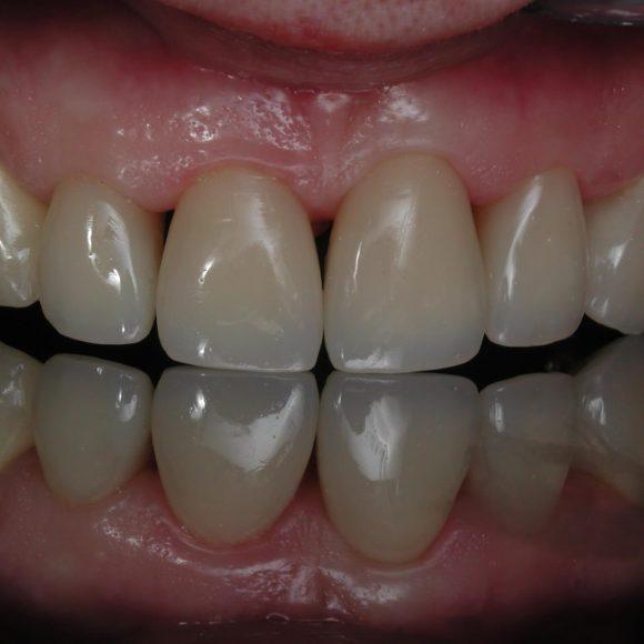 Restaurari dentare directe – Crează-ți un zâmbet atractiv!