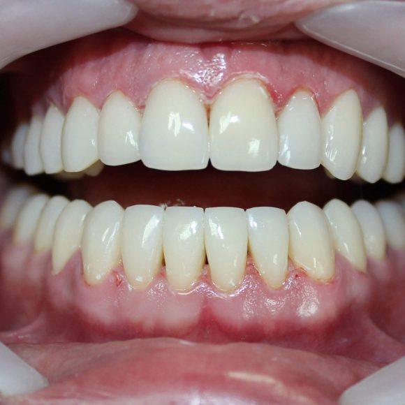 Прямые реставрации зубов