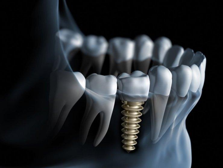 Chirurgie orala / Implantologie